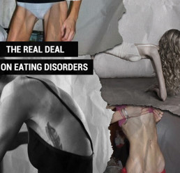 The Real Deal On Eating Disorders and the Growing
