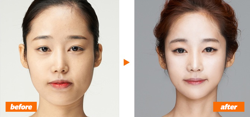 Korean Plastic Surgery Before After Tumblr - celebrity ...